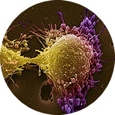 Interdisciplinary Cancer Centre